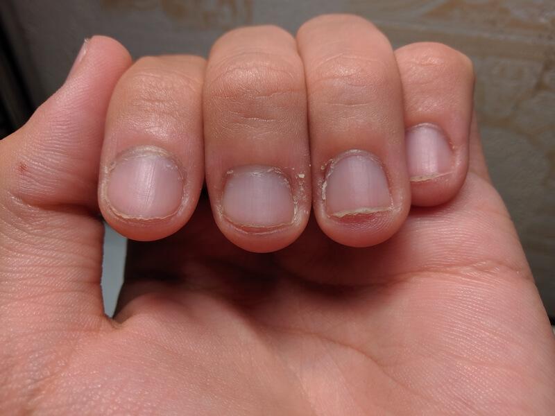 gescheurde en kapotte nagelriemen herstellen